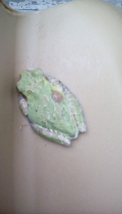 Tree-frog-green